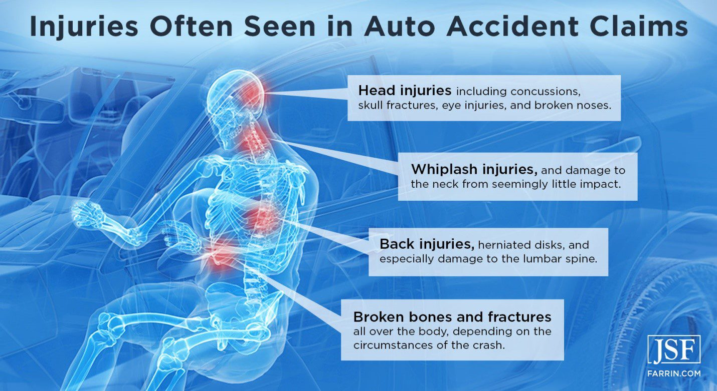 Four common injuries in car accidents, shown on a human skeleton figure.