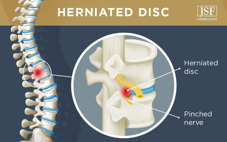 Spine side view showing herniated disc affected area.