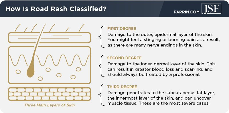 Road rash injuries are classified by how much of the three main layers of skin have been damaged.