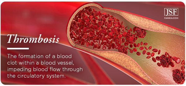 Thrombosis: when a blood clot has formed in a vessel, impeding blood flow.