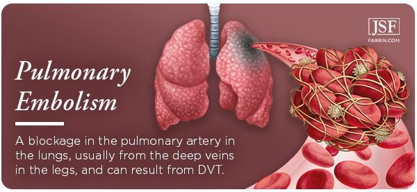 Pulmonary embolism: when a blood clot travels to the lungs. It can be caused by DVT.